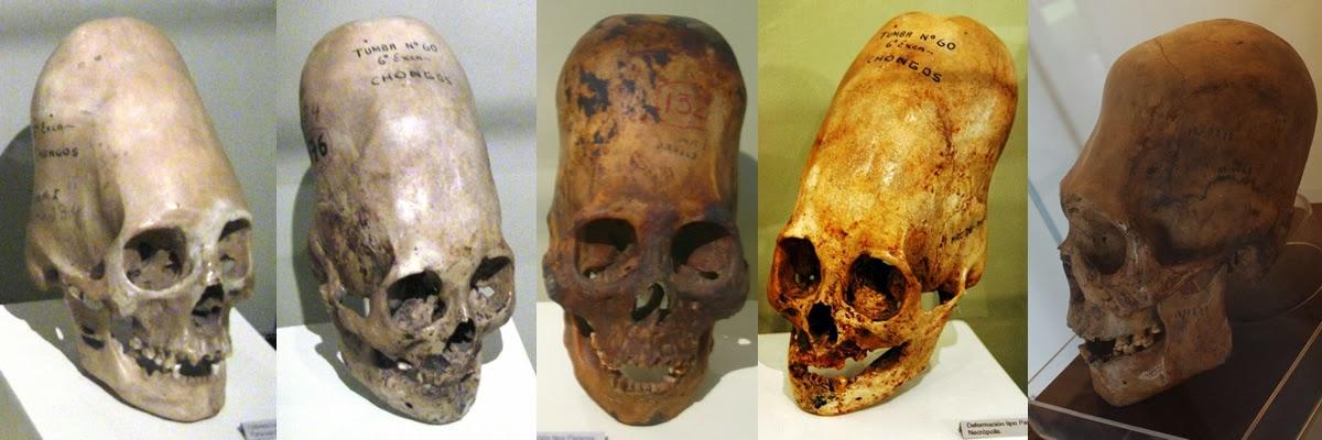 Five Paracas Elongated Skulls