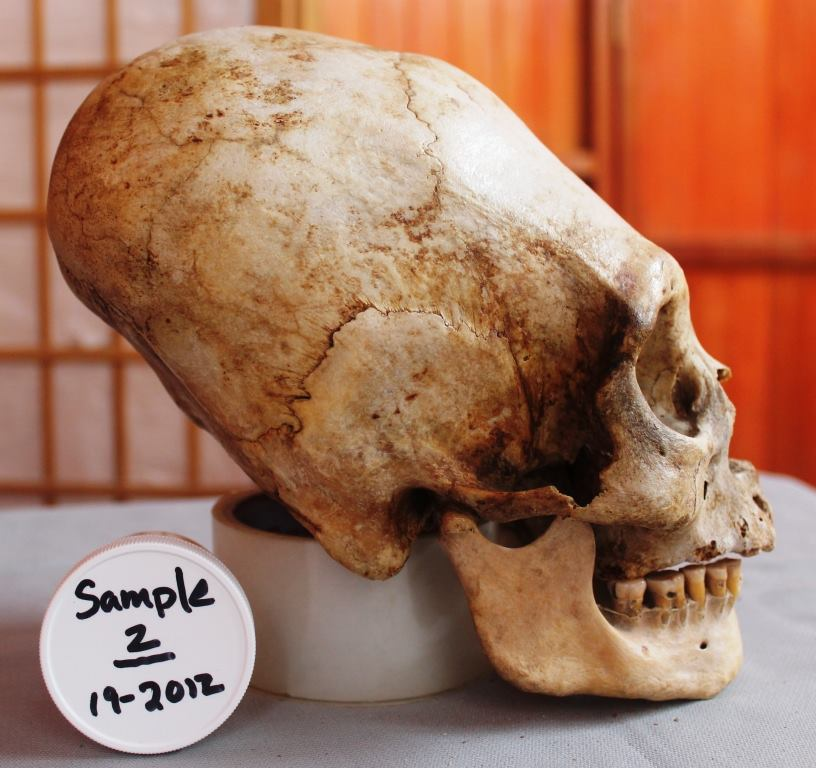 Paracas Skull Used for DNA Sample 2